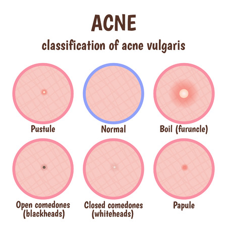 acne: problem skin with pustules, acne, open blackheads and closed comedones whiteheads Illustration