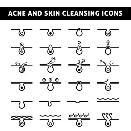 Schwarzweiss-Ikonen Akne, schematische Ansicht eines Hautpflege Problemhaut mit Akne in Abschnitt Standard-Bild - 47006917