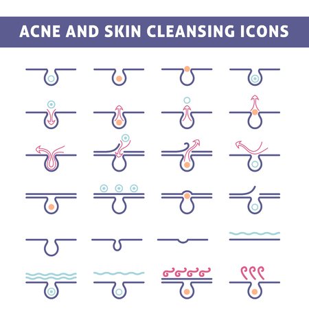 skin care products: icon acne, schematic view of a skin care, problem skin with acne in section