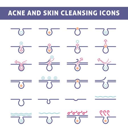 skin infections: icono de acn�, vista esquem�tica de un cuidado de la piel, la piel del problema con el acn� en la secci�n