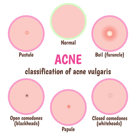 epidermis: icon acne, schematic view of a skin care, problem skin with acne