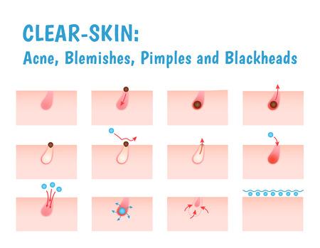 Icon Akne, schematische Ansicht eines Hautpflege Problemhaut mit Akne in Abschnitt Standard-Bild - 47006922