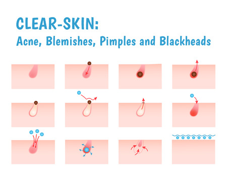 pictogram acne, schematisch aanzicht van een huidverzorging, onzuivere huid met acne in paragraaf Vector Illustratie