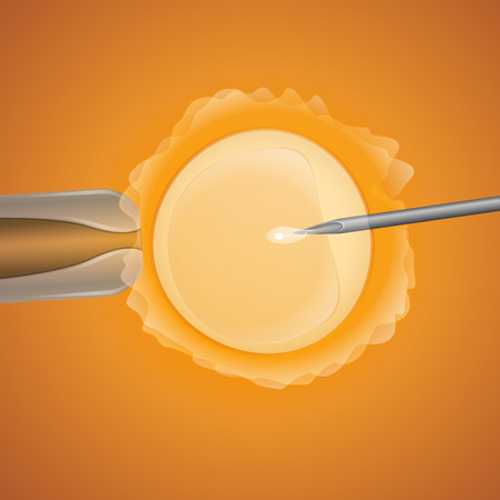in vitro fertilization, the egg is the holding pipette and needle close up on a yellow background