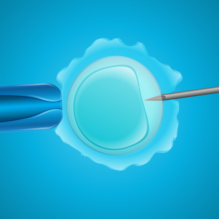 sex chromosomes: in vitro fertilization, the egg is the holding pipette and needle close up on a blue background