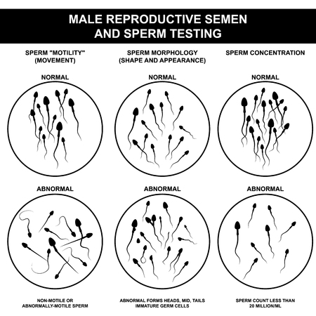 Spermogram and semen parameters, oligozoospermia, asthenozoospermia, teratozoospermia, normal and abnormal sperm Ilustração