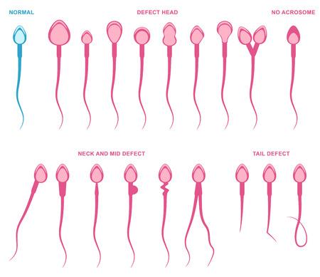 Spermogram and semen parameters, teratozoospermia, normal and abnormal sperm Vector Illustration