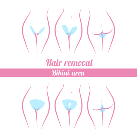 naked woman back: scheme of hair removal bikini area, laser hair removal options Illustration