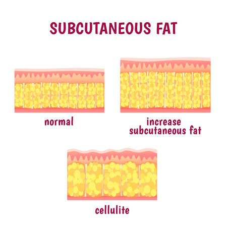 cellulite: leather sectional layer of subcutaneous fat, cellulite scheme Illustration