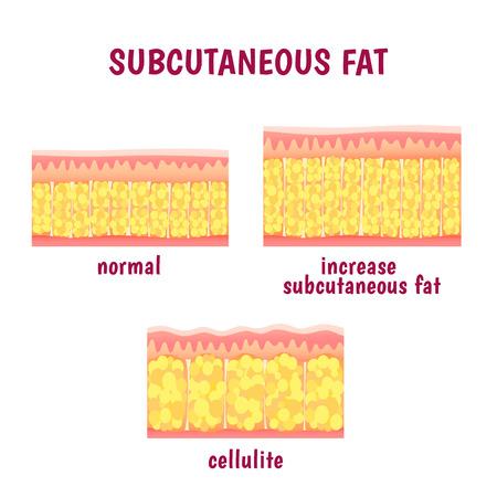 lederen sectionele laag van onderhuids vet, cellulitis regeling