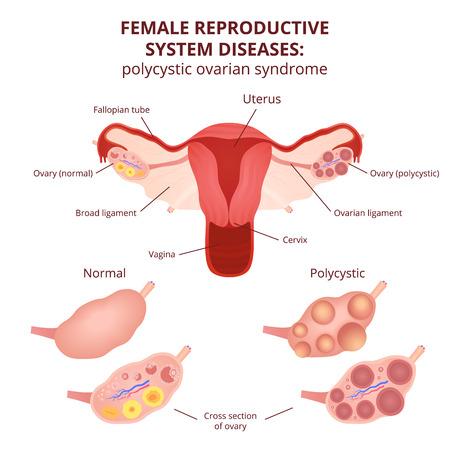 Sistema reproductivo femenino, el esquema de útero y los ovarios, el síndrome de ovario poliquístico, quistes ováricos Foto de archivo - 56801820