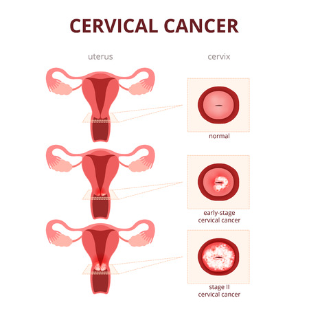 schematic illustration of the uterus and the cervix, female reproductive system diseases Stock Illustratie