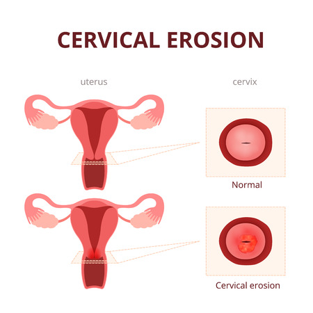 sistema reproductor femenino: ilustración esquemática del útero y el cuello uterino, enfermedades del sistema reproductor femenino Vectores