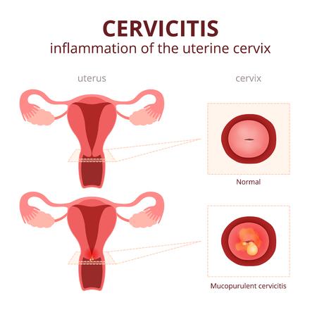 sexo femenino: ilustración esquemática del útero y el cuello uterino, enfermedades del sistema reproductor femenino Vectores