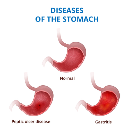 intestinal mucosa: medical poster with a detailed diagram of the structure from the inside of the stomach, digestive system diseases - ulcer and gastritis Illustration