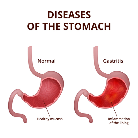 intestinal mucosa: medical poster with a detailed diagram of the structure from the inside of the stomach, digestive system diseases - gastritis