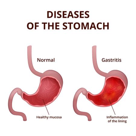 Gastroskopie, Eine Untersuchung Der Speiseröhre Und Des Magens Mit ...