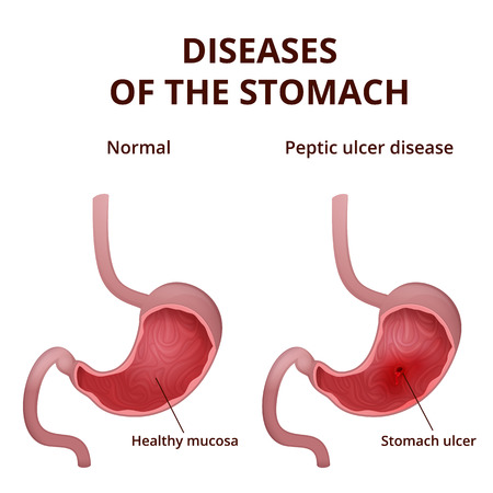intestinal mucosa: medical poster with a detailed diagram of the structure from the inside of the stomach, digestive system diseases - ulcer Illustration