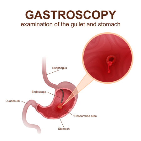 intestinal mucosa: gastroscopy, a study of the esophagus and stomach using an endoscope, diagnosis of diseases of the digestive system of humans Illustration