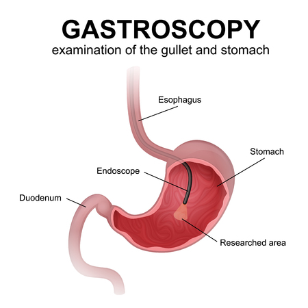 gastroscopy, a study of the esophagus and stomach using an endoscope, diagnosis of diseases of the digestive system of humans Illustration