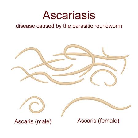 Illustration Ascaris - roundworms, parasites, male and female Векторная Иллюстрация