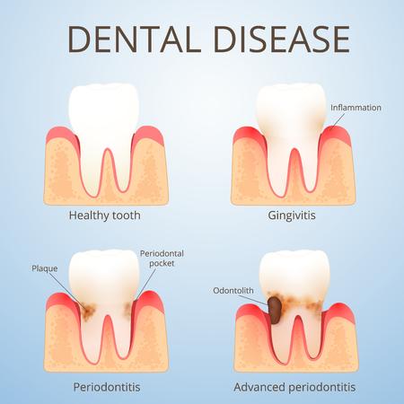 structure of human teeth Standard-Bild