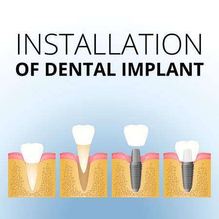 la implantación del diente Ilustración de vector