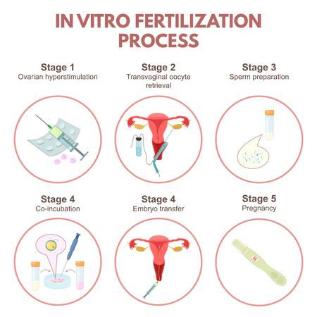 In vitro fertilization Stock Illustratie