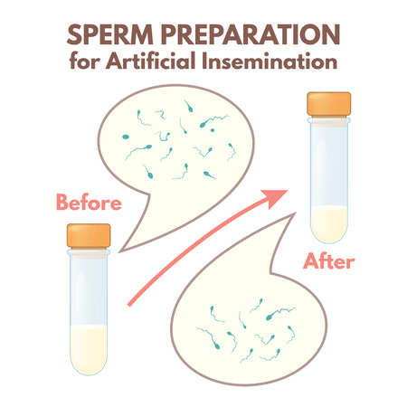 preparation of sperm Illustration