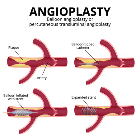 Angioplasty, percutaneous transluminal angioplasty PTA , stages of operation, artery with plaques in a section