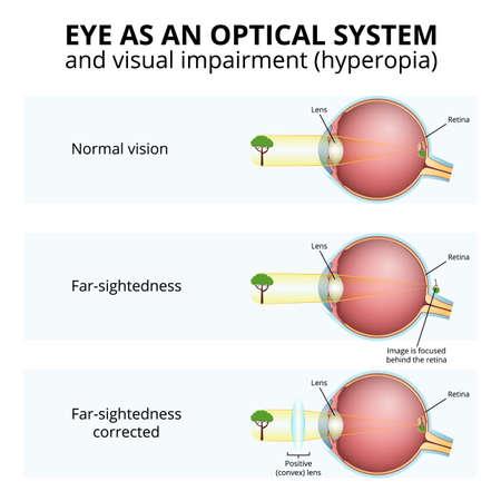 structure of the eyeball, visual impairment, farsightedness