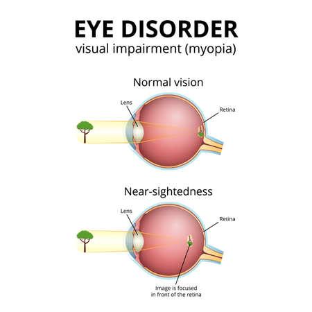 structure of the eyeball, visual impairment, near-sightedness Illustration