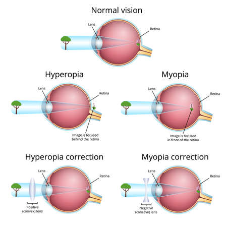 vision problems and their correction, myopia and hyperopia Standard-Bild