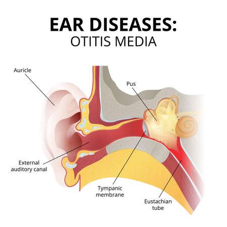 acute otitis media, sectional image on white background