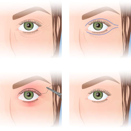 blepharoplasty, upper eyelid plastic, before and after images