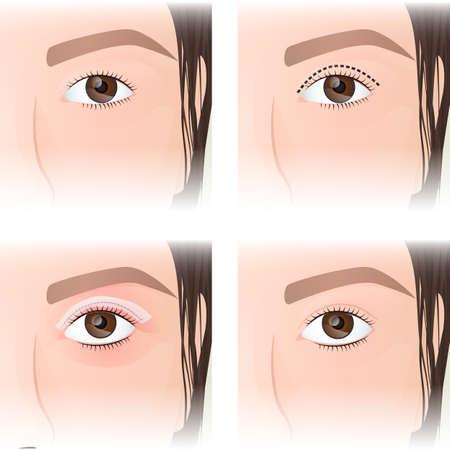 East Asian blepharoplasty, before and after images Illustration
