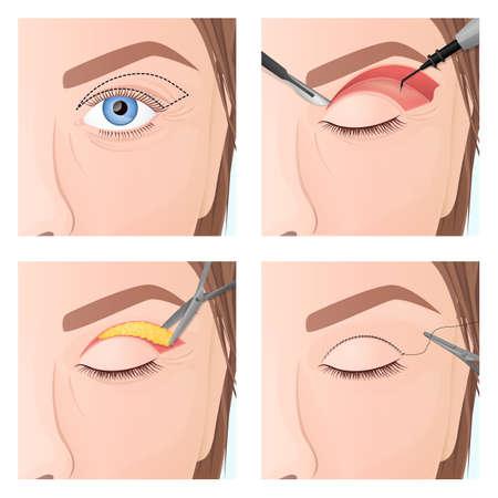 upper eyelid plastic surgery procedure, step by step process Illustration
