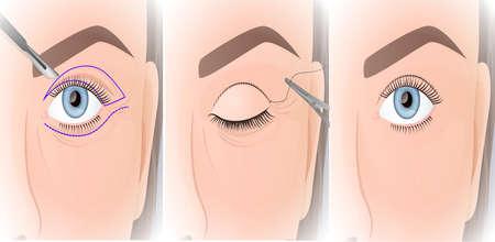 blepharoplasty procedure, plastic surgery of the upper eyelid