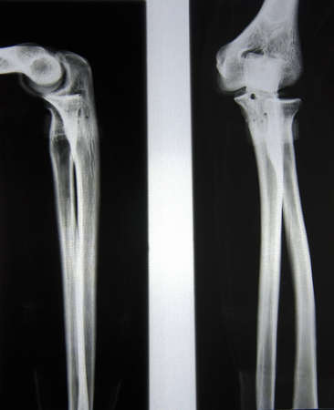 proximal: x-Ray picture of forearm and elbow from to angles Stock Photo