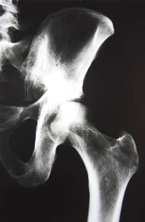 X-Ray picture of a hip Stock Photo