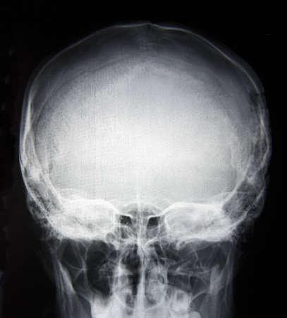 Y-Ray immagine della base cranica