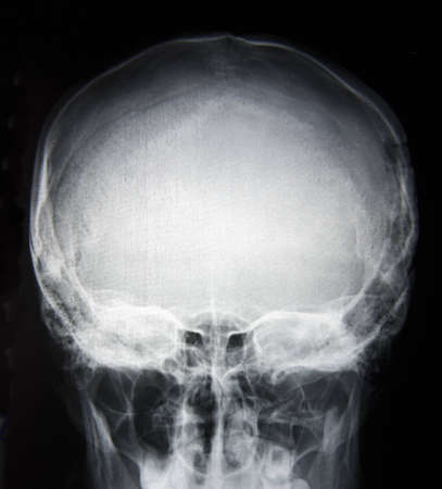 Y-Ray picture of skull base