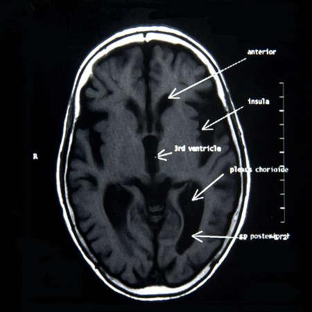 MRI del cervello con spiegazioni