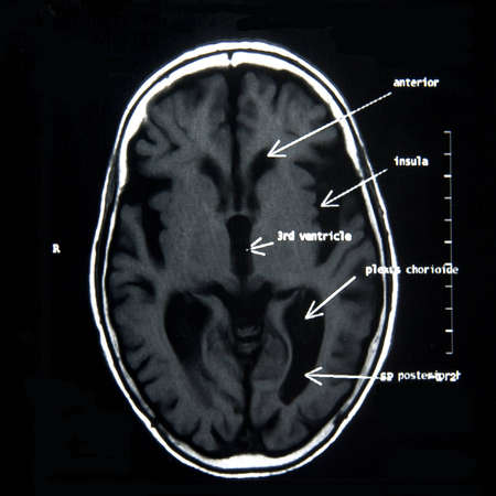 MRI of the brain with explanations Stock Photo - 11345344