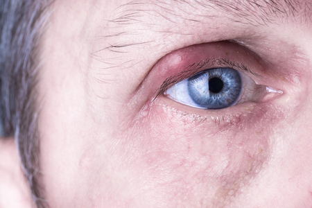 Infected purulent eye. close up of the eyelid infection during eye examination