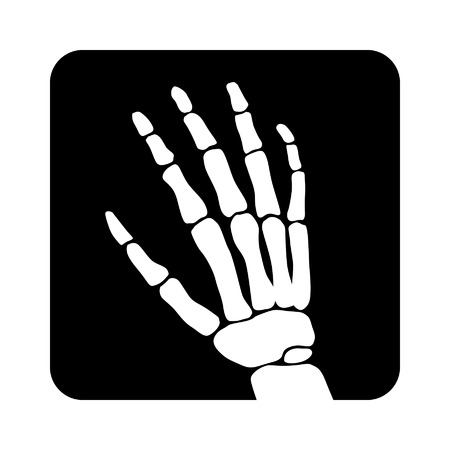 radiography: Human hand x-ray image scan for apps and websites
