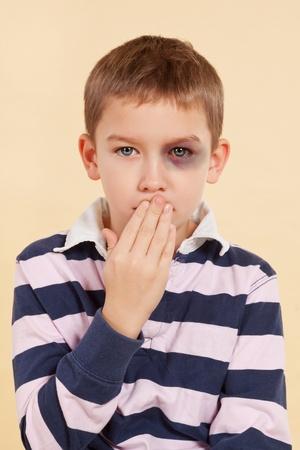 Ung pojke med svarta ögon och handen över hans mun isolerade. Våld koncept. Psst