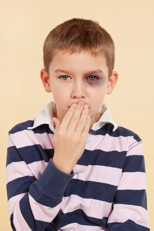 punishments: Young boy with black eye and hand over his mouth isolated. Domestic violence concept. Psst
