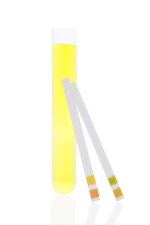 pH test strips, litmus paper and urine in test tube isolated on white background photo