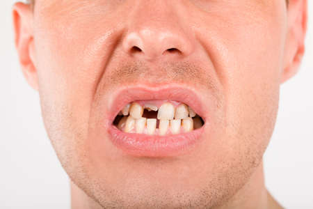 Close up photo of young man with missing teeth. Drug abuse, disease, oral hygiene and unhealthy lifestyle.